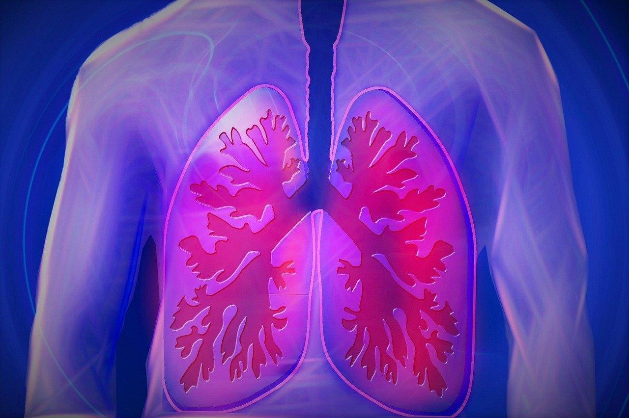 Un compuesto desarrollado por MetrioPharm podría proteger los pulmones en pacientes con EPOC